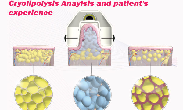 Cryolipolysis Anaylsis and patient's experience